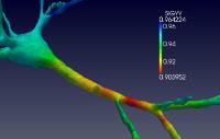 Numerical simulation of a neuron